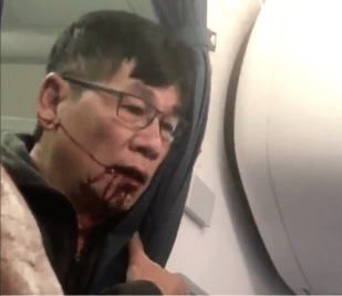 UNITED AIRLINES HIT AND DRAGGED OFF A PASSENGER FROM THE PLANE!!!